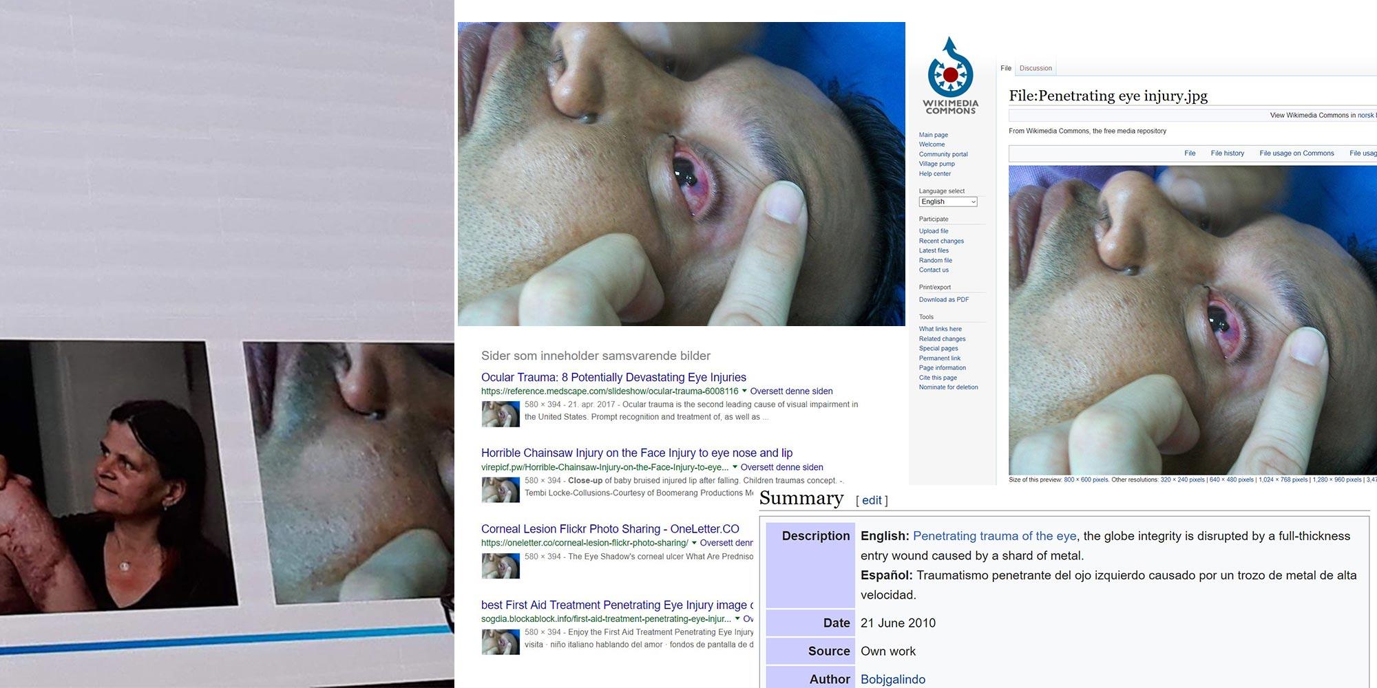 NFF avslørt igjen: Øyeskade fra seminar mot pyro var skade fra stålsplint i 2010. I Venezuela.