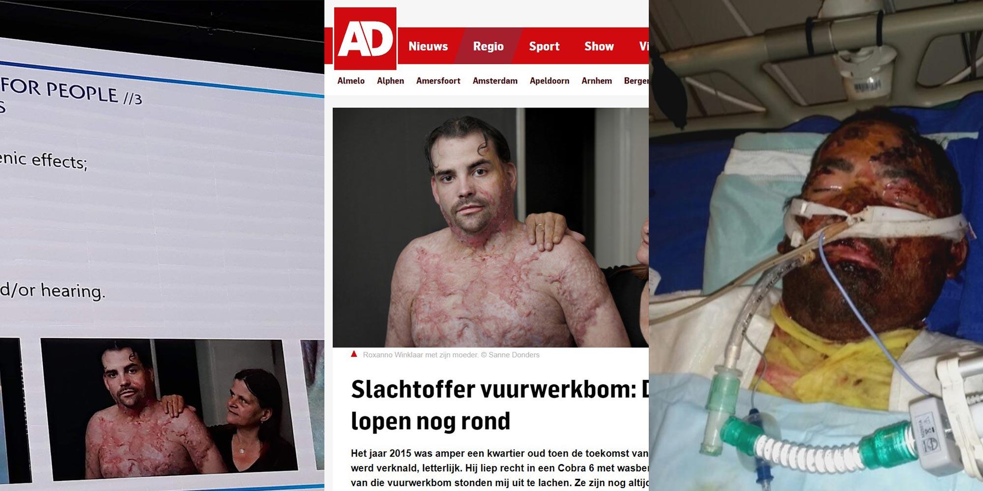 NFF avslørt:  Roxanno (33) vist fram på seminar mot pyro – ble egentlig hardt skadd av hjemmelaget bensinbombe i Rotterdam